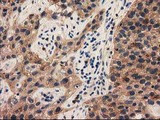IHC of paraffin-embedded Carcinoma of Human bladder tissue using anti-PYCRL mouse monoclonal antibody.