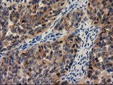IHC of paraffin-embedded Human pancreas tissue using anti-PYCRL mouse monoclonal antibody.