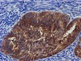 IHC of paraffin-embedded Adenocarcinoma of Human endometrium tissue using anti-PYCRL mouse monoclonal antibody.