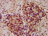 Immunohistochemistry image at a dilution of 1:300 and staining in paraffin-embedded human ovarian cancer performed on a Leica BondTM system. After dewaxing and hydration, antigen retrieval was mediated by high pressure in a citrate buffer (pH 6.0) . Section was blocked with 10% normal goat serum 30min at RT. Then primary antibody (1% BSA) was incubated at 4 °C overnight. The primary is detected by a biotinylated secondary antibody and visualized using an HRP conjugated SP system.