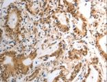 Immunohistochemistry of Human gastric cancer using RAD50 Polyclonal Antibody at dilution of 1:40.