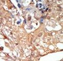 RAF1 / RAF Antibody - Formalin-fixed and paraffin-embedded human cancer tissue reacted with the primary antibody, which was peroxidase-conjugated to the secondary antibody, followed by DAB staining. This data demonstrates the use of this antibody for immunohistochemistry; clinical relevance has not been evaluated. BC = breast carcinoma; HC = hepatocarcinoma.