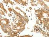 RARRES1 Antibody - Immunohistochemistry of paraffin-embedded Human gastric cancer using RARRES1 Polyclonal Antibody at dilution of 1:60.
