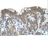RARRES3 antibody LS-C80895 was used in IHC to stain formalin-fixed, paraffin-embedded human stomach.  This image was taken for the unconjugated form of this product. Other forms have not been tested.