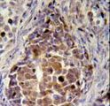RDH16 Antibody - RDH16 Antibody (N-term immunohistochemistry of formalin-fixed and paraffin-embedded human skin carcinoma followed by peroxidase-conjugated secondary antibody and DAB staining.