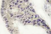 IHC of Recoverin (D143) pAb in paraffin-embedded human lung carcinoma tissue.