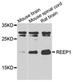 REEP1 Antibody - Western blot analysis of extracts of various tissues.