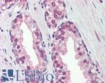 Anti-REXO1 antibody IHC of human prostate. Immunohistochemistry of formalin-fixed, paraffin-embedded tissue after heat-induced antigen retrieval. Antibody concentration 5 ug/ml.