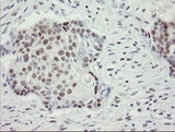IHC of paraffin-embedded Carcinoma of Human lung tissue using anti-RFC2 mouse monoclonal antibody.