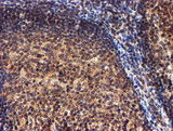 IHC of paraffin-embedded Human tonsil using anti-RFXANK mouse monoclonal antibody.