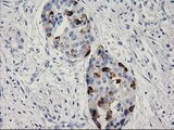 IHC of paraffin-embedded Carcinoma of Human pancreas tissue using anti-RGS5 mouse monoclonal antibody. (Heat-induced epitope retrieval by 10mM citric buffer, pH6.0, 100C for 10min).