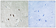 Immunohistochemistry analysis of paraffin-embedded human brain tissue, using RIPK2 Antibody. The picture on the right is blocked with the synthesized peptide.