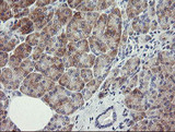 RIOK2 Antibody - IHC of paraffin-embedded Human pancreas tissue using anti-RIOK2 mouse monoclonal antibody.