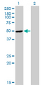 RNH1 Antibody - Western Blot analysis of RNH1 expression in transfected 293T cell line by RNH1 monoclonal antibody (M07), clone 3F5.Lane 1: RNH1 transfected lysate(50 KDa).Lane 2: Non-transfected lysate.