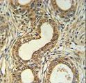 Roundabout 4 Antibody IHC of formalin-fixed and paraffin-embedded prostate carcinoma followed by peroxidase-conjugated secondary antibody and DAB staining. This data demonstrates the use of the Roundabout 4 Antibody for immunohistochemistry.
