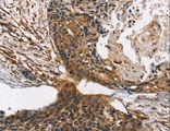 Immunohistochemistry of paraffin-embedded Human esophagus cancer using CNGA1 Polyclonal Antibody at dilution of 1:40.