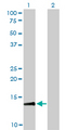 Western blot of RPA3 expression in transfected 293T cell line by RPA3 monoclonal antibody (M01), clone 1F4.
