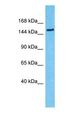Western blot of FTM Antibody with human 293T Whole Cell lysate.  This image was taken for the unconjugated form of this product. Other forms have not been tested.