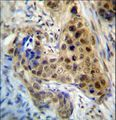 RPL3 Antibody immunohistochemistry of formalin-fixed and paraffin-embedded human breast carcinoma followed by peroxidase-conjugated secondary antibody and DAB staining.