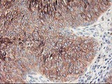 RPN1 / Ribophorin I Antibody - IHC of paraffin-embedded Carcinoma of Human bladder tissue using anti-RPN1 mouse monoclonal antibody.