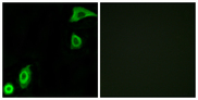 Immunofluorescence analysis of A549 cells, using RPS20 Antibody. The picture on the right is blocked with the synthesized peptide.