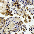 RPS20 / Ribosomal Protein S20 Antibody - Immunohistochemical analysis of RPS20 staining in human lung cancer formalin fixed paraffin embedded tissue section. The section was pre-treated using heat mediated antigen retrieval with sodium citrate buffer (pH 6.0). The section was then incubated with the antibody at room temperature and detected using an HRP polymer system. DAB was used as the chromogen. The section was then counterstained with hematoxylin and mounted with DPX.