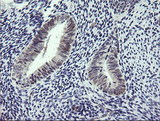 IHC of paraffin-embedded Human endometrium tissue using anti-RTKN mouse monoclonal antibody. (Heat-induced epitope retrieval by 10mM citric buffer, pH6.0, 100C for 10min).
