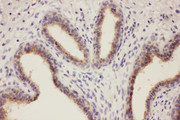 RTN3 / Reticulon 3 Antibody - RTN3 / Reticulon 3 antibody. IHC(P): Human Breast Cancer Tissue.