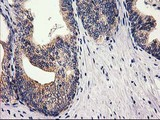 IHC of paraffin-embedded Carcinoma of Human prostate tissue using anti-RTN4IP1 mouse monoclonal antibody.
