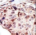 RYK Antibody - Formalin-fixed and paraffin-embedded human cancer tissue reacted with the primary antibody, which was peroxidase-conjugated to the secondary antibody, followed by AEC staining. This data demonstrates the use of this antibody for immunohistochemistry; clinical relevance has not been evaluated. BC = breast carcinoma; HC = hepatocarcinoma.