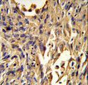 Formalin-fixed and paraffin-embedded human lung carcinoma reacted with S100A10 Antibody , which was peroxidase-conjugated to the secondary antibody, followed by DAB staining. This data demonstrates the use of this antibody for immunohistochemistry; clinical relevance has not been evaluated.