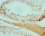 SALL4 Antibody - Immunohistochemistry of paraffin-embedded human testicle using antibody at 1:100 dilution.