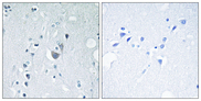 SAPK / JNK / MAPK8 + MAPK9 + MAPK10 Antibody - Immunohistochemistry analysis of paraffin-embedded human brain, using SAPK/JNK (Phospho-Tyr185) Antibody. The picture on the right is blocked with the phospho peptide.