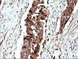 SCAMP2 Antibody - IHC of paraffin-embedded Carcinoma of Human bladder tissue using anti-SCAMP2 mouse monoclonal antibody. (Heat-induced epitope retrieval by 10mM citric buffer, pH6.0, 120°C for 3min).