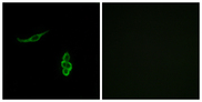 SCNN1D Antibody - Immunofluorescence analysis of A549 cells, using SCNN1D Antibody. The picture on the right is blocked with the synthesized peptide.