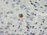IHC of paraffin-embedded Carcinoma of Human bladder tissue using anti-SDS mouse monoclonal antibody. (Heat-induced epitope retrieval by 10mM citric buffer, pH6.0, 100C for 10min).
