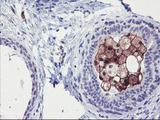 IHC of paraffin-embedded Human breast tissue using anti-SDS mouse monoclonal antibody.