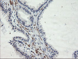 IHC of paraffin-embedded Human prostate tissue using anti-SENP2 mouse monoclonal antibody.