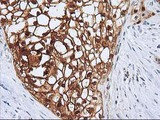 IHC of paraffin-embedded Carcinoma of Human pancreas tissue using anti-SERPINB4 mouse monoclonal antibody.