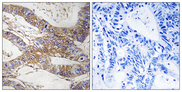 Immunohistochemistry analysis of paraffin-embedded human colon carcinoma tissue, using SERPINB9 Antibody. The picture on the right is blocked with the synthesized peptide.