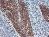 IHC of paraffin-embedded Adenocarcinoma of Human endometrium tissue using anti-SH2D2A mouse monoclonal antibody.