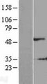 SHSF1 / SHFM1 Protein - Western validation with an anti-DDK antibody * L: Control HEK293 lysate R: Over-expression lysate