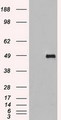 SIGLEC9 Antibody - HEK293T cells were transfected with the pCMV6-ENTRY control (Left lane) or pCMV6-ENTRY SIGLEC9 (Right lane) cDNA for 48 hrs and lysed. Equivalent amounts of cell lysates (5 ug per lane) were separated by SDS-PAGE and immunoblotted with anti-SIGLEC9.