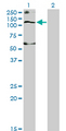 Western Blot analysis of SLC12A4 expression in transfected 293T cell line by SLC12A4 monoclonal antibody (M01), clone 1H6.Lane 1: SLC12A4 transfected lysate(120.6 KDa).Lane 2: Non-transfected lysate.