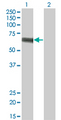 SLC5A2 / SGLT2 Antibody - Western Blot analysis of SLC5A2 expression in transfected 293T cell line by SLC5A2 monoclonal antibody (M01), clone 3G8.Lane 1: SLC5A2 transfected lysate(72.9 KDa).Lane 2: Non-transfected lysate.