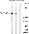 Western blot analysis of lysates from HepG2 and HUVEC cells, using SLC5A6 Antibody. The lane on the right is blocked with the synthesized peptide.