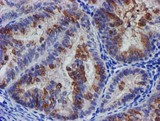 IHC of paraffin-embedded Adenocarcinoma of Human endometrium tissue using anti-SLFNL1 mouse monoclonal antibody.