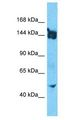 SLIT3 Antibody - SLIT3 antibody Western Blot of HepG2. Antibody dilution: 1 ug/ml.  This image was taken for the unconjugated form of this product. Other forms have not been tested.