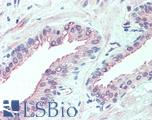 Anti-SLITRK6 antibody LS-A9246 IHC of human prostate. Immunohistochemistry of formalin-fixed, paraffin-embedded tissue after heat-induced antigen retrieval.