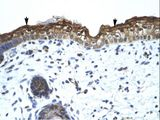 SMARCA2 antibody LS-C30062 was used in IHC to stain formalin-fixed, paraffin-embedded human skin.  This image was taken for the unconjugated form of this product. Other forms have not been tested.